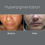 Hiperpigmentation2