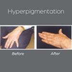 Hiperpigmentation3