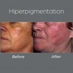 Hiperpigmentation5