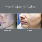 Hyperpigmentation1