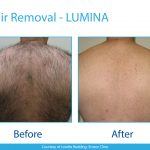 Lumina-B-&-A-Hair-Removal-2-Back-