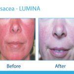 Lumina-B-&-A-Vascular—Rosacea-1-