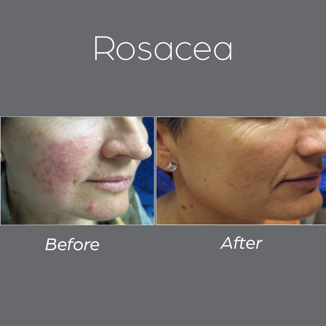 Before And After Ego Health Amp Beauty
