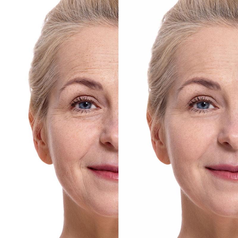 Anti-Wrinkle-clinic-victoria